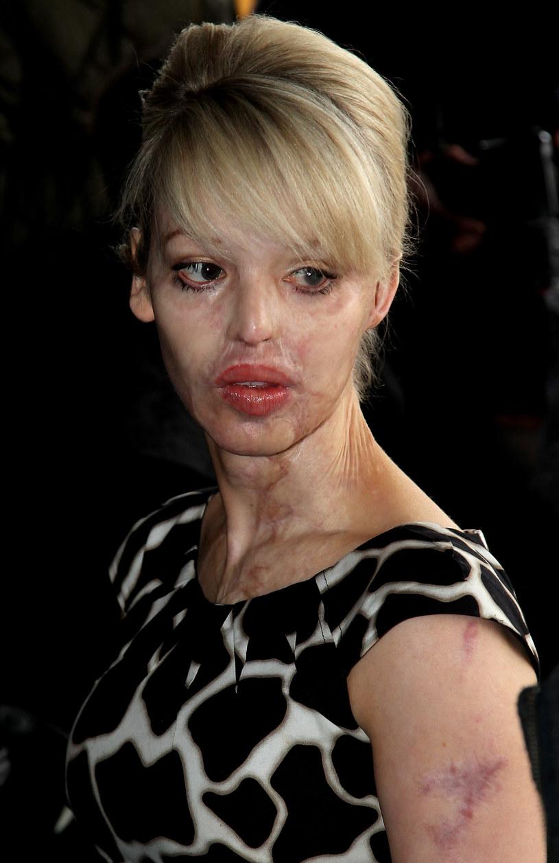 Modelka przeszła kilkadzisiąt operacji; zdj. z 2010 roku /Chris Jackson /Getty Images