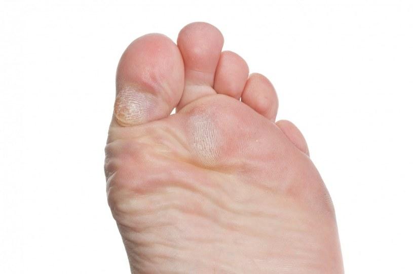 Modzele na stopach zapobieganie /© Photogenica