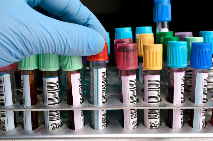 Morfologię krwi dobrze jest wykonywać raz w roku /123RF/PICSEL