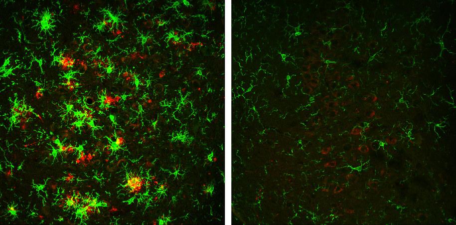 Mózg 10-miesięcznej myszy z chorobą Alzheimera (po lewej). Na czerwono oznaczono złogi białkowe. Po prawej mózg myszy, która stopniowo traci enzym BACE1 /Hu et al., 2018 /Materiały prasowe