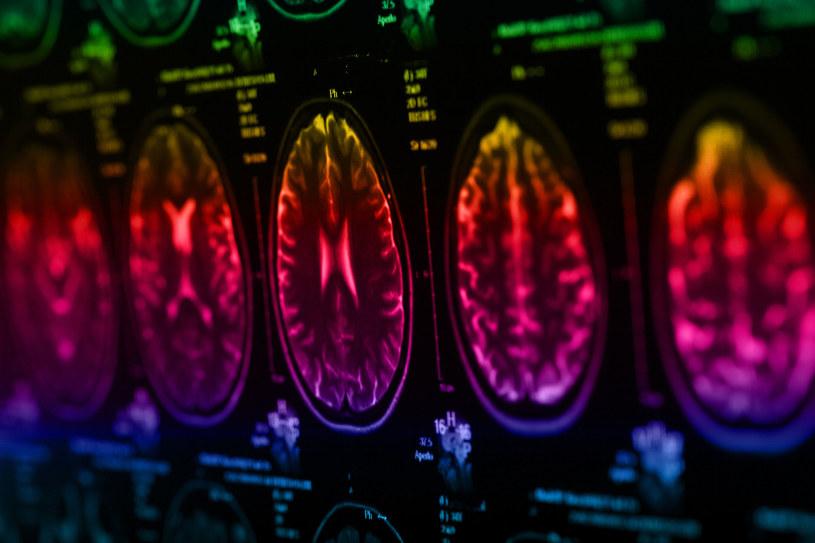 Możliwości ludzkiego mózgu wciąż są badane przez naukowców /123RF/PICSEL