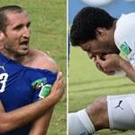 MŚ 2014 - Lugano: Jestem wściekły, wszyscy mówią tylko o Suarezie