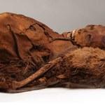 Mumie Inuitów sprzed 500 lat z miażdżycą w tętnicach