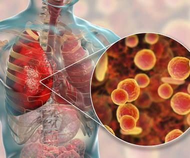 Mykoplazmoza: Przyczyny, objawy i leczenie