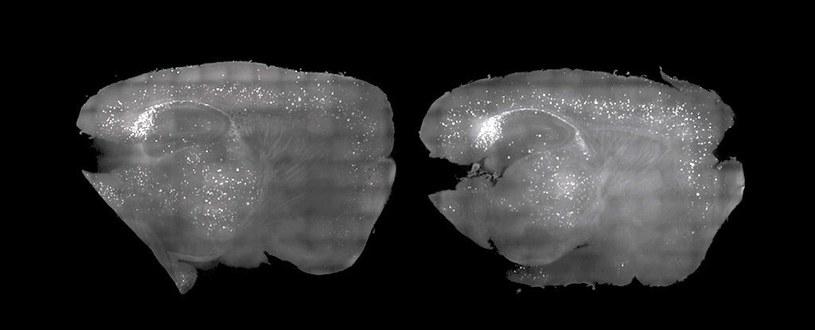 Mysli mózg po leczeniu (po lewej) i bez (po prawej) /materiały prasowe