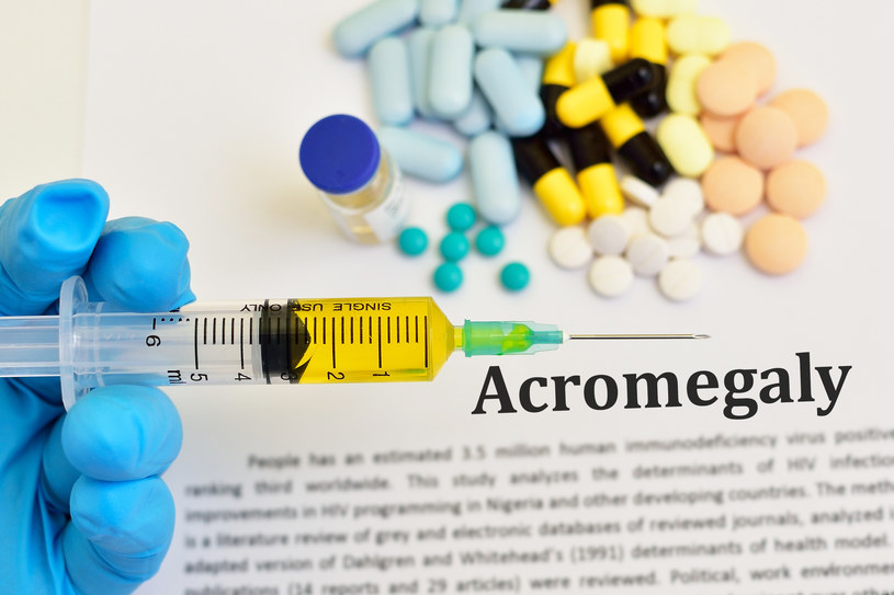 Na akromegalię w Polsce cierpi ok. 2500 osób /123RF/PICSEL