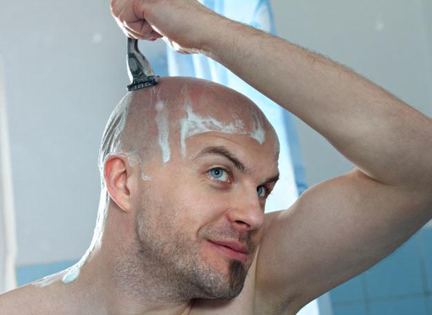 męskie wypadanie włosów