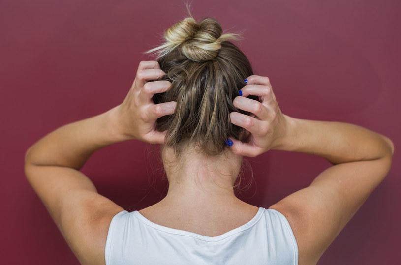 Na pojawianie się łupieżu może mieć wpływ zbyt częste używanie lakieru do włosów i suchego szamponu /123RF/PICSEL