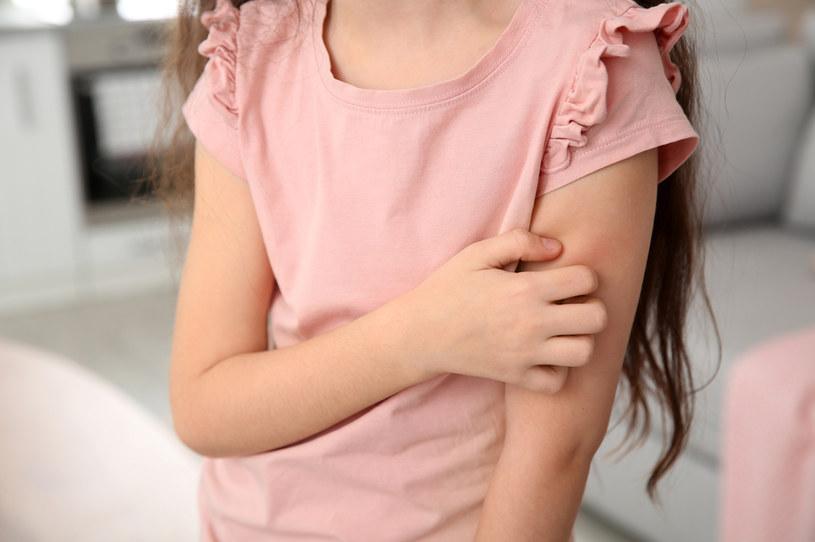 Na powstanie choroby narażone są głównie dzieci /123RF/PICSEL