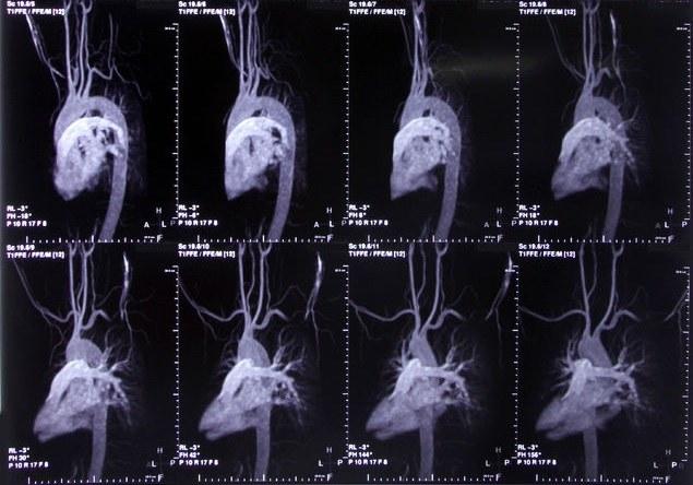 Na zdjęciach TK dysfunkcje tętnic wieńcowych widać jak na dłoni /123RF/PICSEL