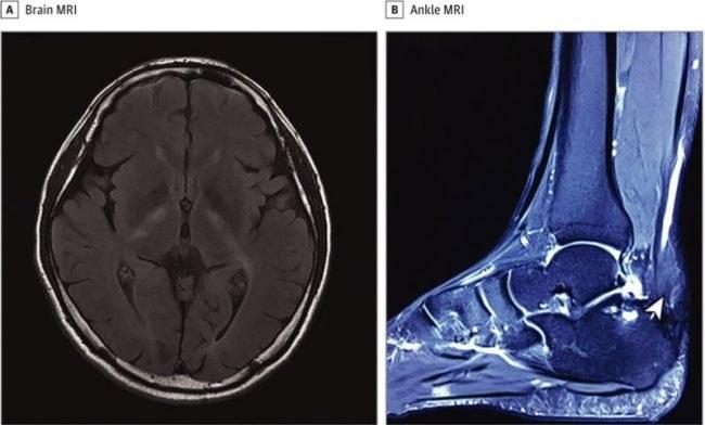 Na zdjęciu MRI mózgu pacjenta (A) i kostki (B). Strzałka na zdjęciu B wskazuje powiększenie ścięgna Achillesa pacjenta, które zwęża się na końcu /Fot. JAMA Neurology /materiały prasowe