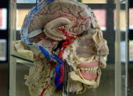 Na zdjęciu: przekrój mózgu w Muzeum Mózgu w Limie, marzec 2005 /AFP