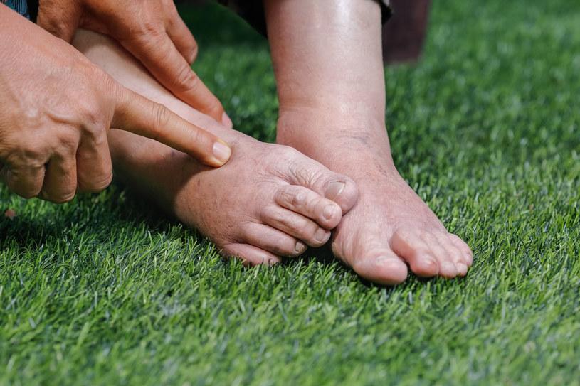 Nabrzmiałe, ciastowate ciało, palce jak serdelki i problemy z założeniem ulubionych butów to oznaki niedoboru wody w organizmie /123RF/PICSEL