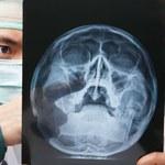 Nadchodzi bezpieczniejsze promieniowanie rentgenowskie