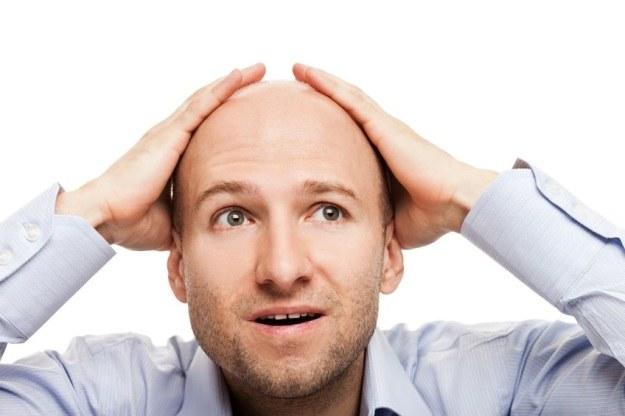 Nadchodzi ratunek dla łysiejących mężczyzn? /123RF/PICSEL