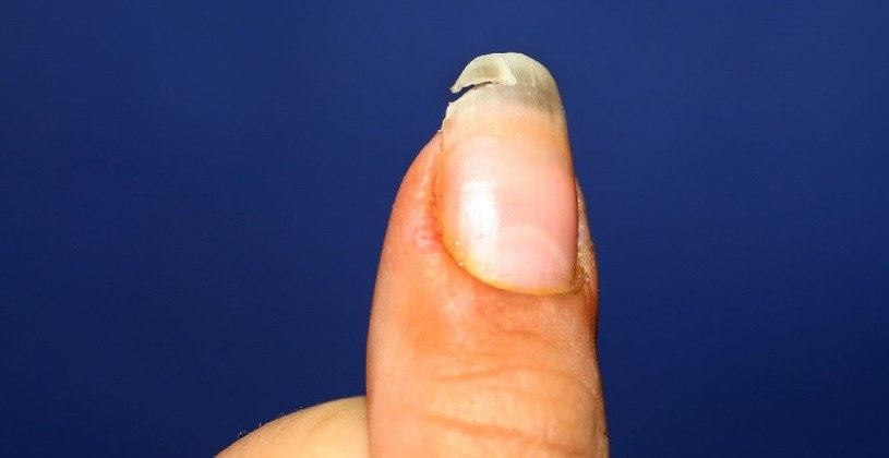Naderwanego paznokcia lepiej nie obcinać /123RF/PICSEL