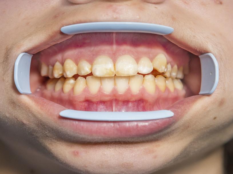 Nadmiar fluoru może doprowadzić do fluorozy. Najczęściej dotyka ona zębów /123RF/PICSEL