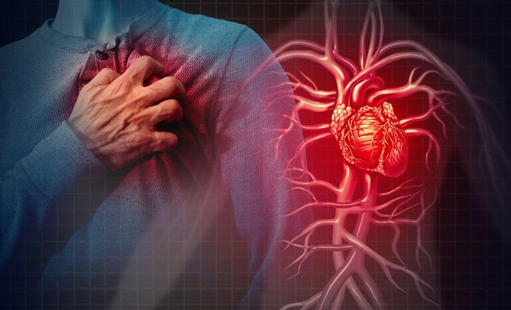 Nadmiar homocysteiny w organizmie jest bardzo groźny dla serca /123RF/PICSEL