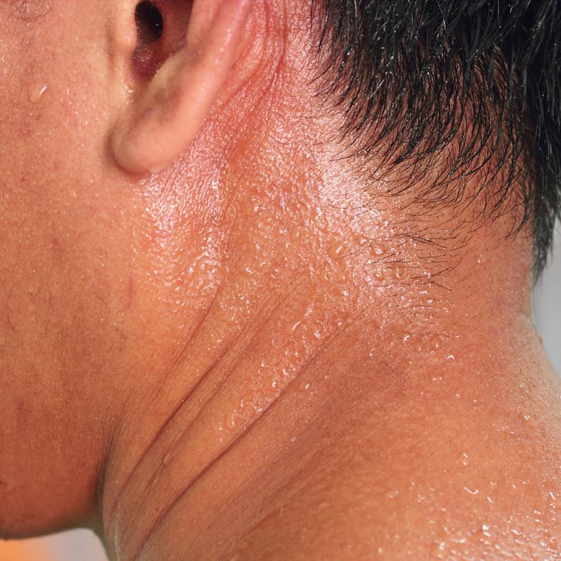 Nadmierne pocenie może dotyczyć właściwie każdego fragmentu skóry na ciele /123RF/PICSEL