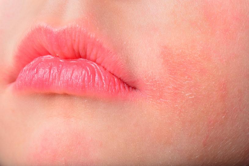 Nadmiernie zaczerwieniona skóra to często efekt złej pielęgnacji /123RF/PICSEL
