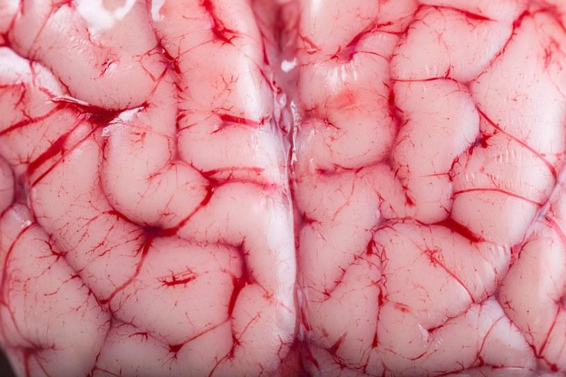 Nadwaga poważnie wpływa na aktywność mózgu /123RF/PICSEL