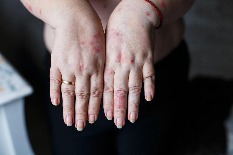 Najbardziej niepokojące są nietypowe objawy skórne oporne na standardowe leczenie /123RF/PICSEL