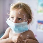 Najbardziej zakaźne choroby: Objawy i leczenie