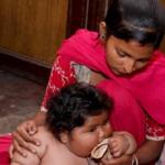"""""""Najcięższe dziecko na świecie"""" Chahat Kumar ma 3 lata i waży 25 kg!"""