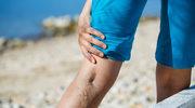 Najlepsze kuracje na żylaki i obrzęki nóg
