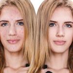Najlepsze kwasy na leczenie przebarwień i niedoskonałości skóry