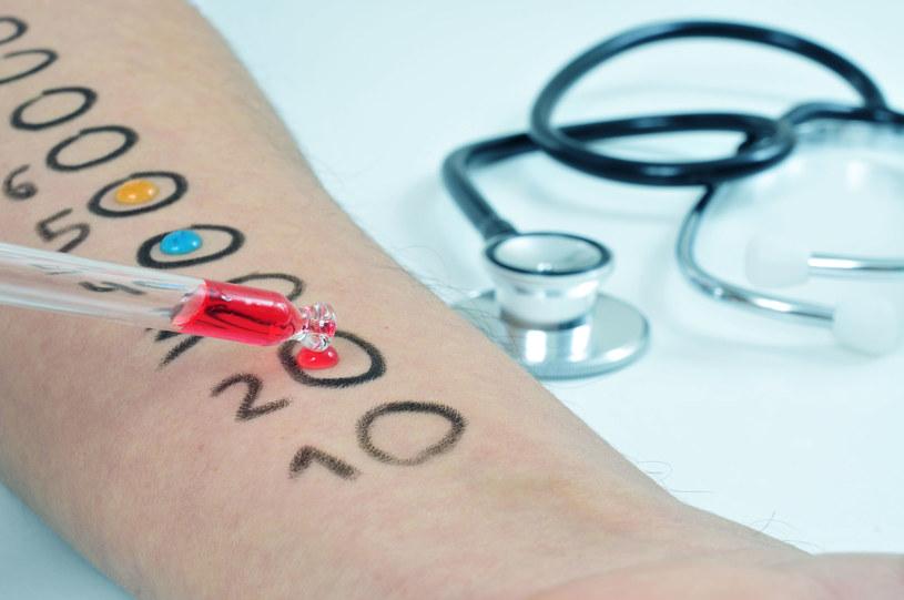 Najprostszym sposobem na zdiagnozowanie alergii są testy alergiczne /123RF/PICSEL