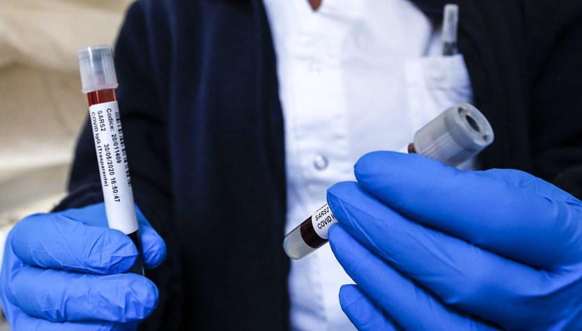 Najwięcej nowych zachorowań na Śląsku. Już ponad 6 mln zakażeń koronawirusem na świecie [NA ŻYWO]