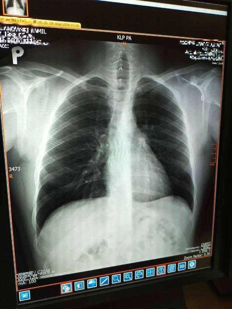 Najwięcej zmian po Covid-19 można zaobserwować w płucach /Małopolski Szpital Chorób Płuc i Rehabilitacji /