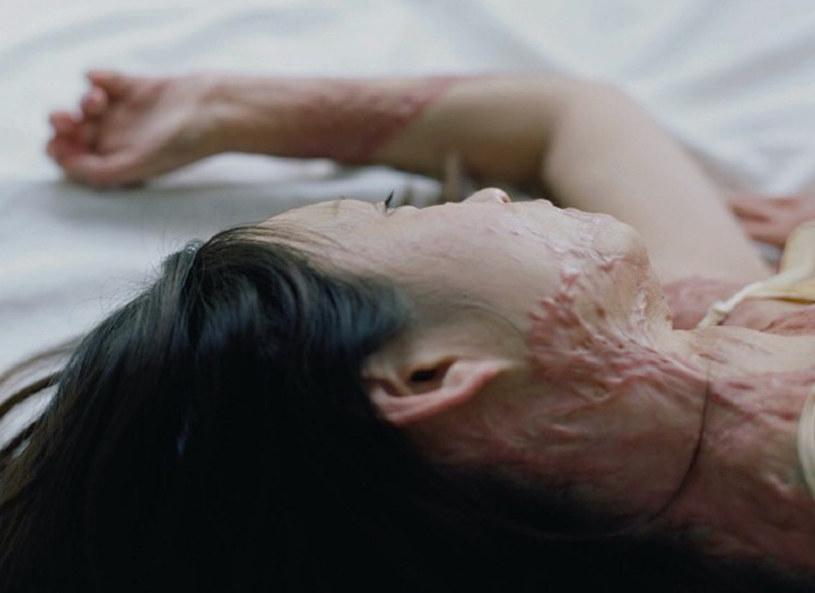 Największych obrażeń Zhou doznała w okolicy twarzy i szyi /CEN    /East News
