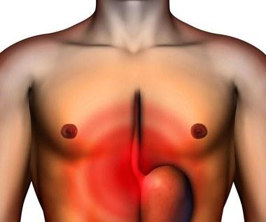 Naturalne, proste i skuteczne sposoby na nieżyt żołądka