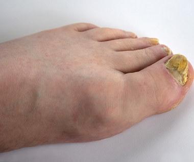 Naturalne sposoby na grzybicę paznokci