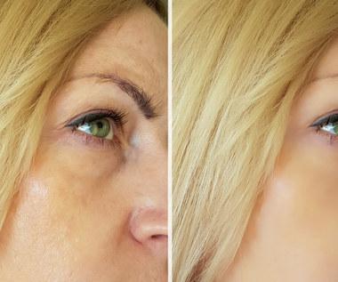 Naturalne sposoby na opuchnięte oczy. Szybko odczujesz ulgę