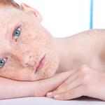 Naturalne sposoby na podrażnioną skórę