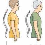 Naturalne sposoby zapobiegania osteoporozie