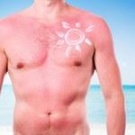 Naturalne zabiegi na oparzenia słoneczne