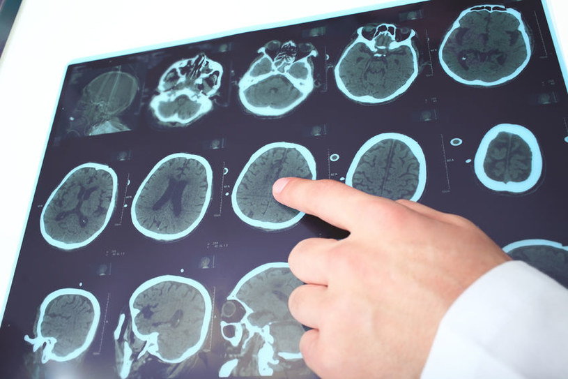 Naukowcom będzie teraz łatwiej namierzyć regiony mózgu odpowiedzialne za epilepsję /123RF/PICSEL