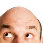 Naukowcy odkryli przyczynę łysienia