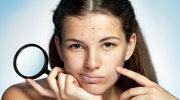 Naukowcy ostrzegają: Trądzik może wywołać depresję