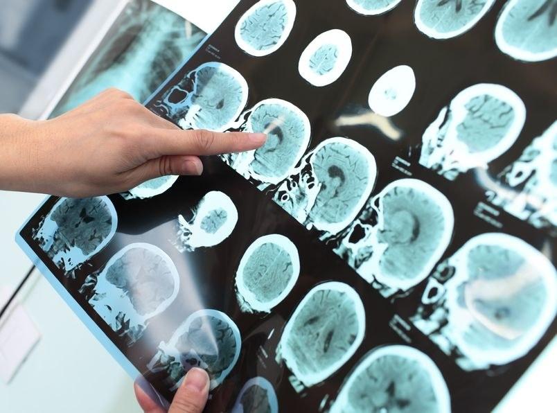Naukowcy są coraz bliżej pokonania choroby Alzheimera? /123RF/PICSEL