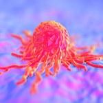 Naukowcy stworzyli skuteczny test wykrywający rodzaj raka prostaty