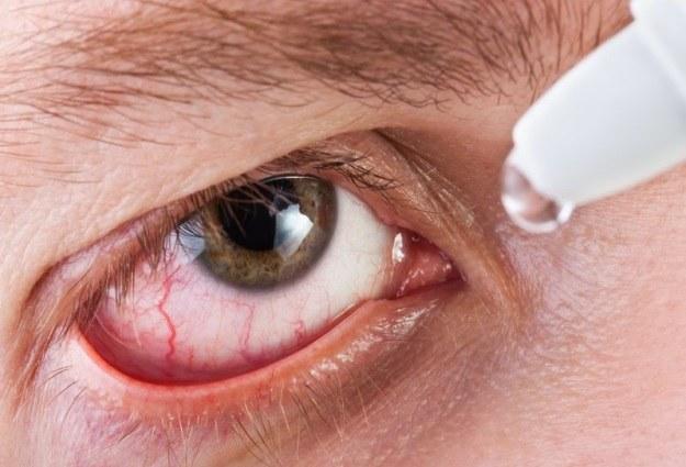 Naukowcy znaleźli sposób na zespół suchego oka /123RF/PICSEL
