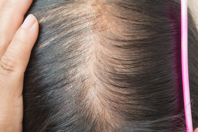 Nawet kilka dni na diecie wysokotłuszczowej może poważnie zaszkodzić włosom