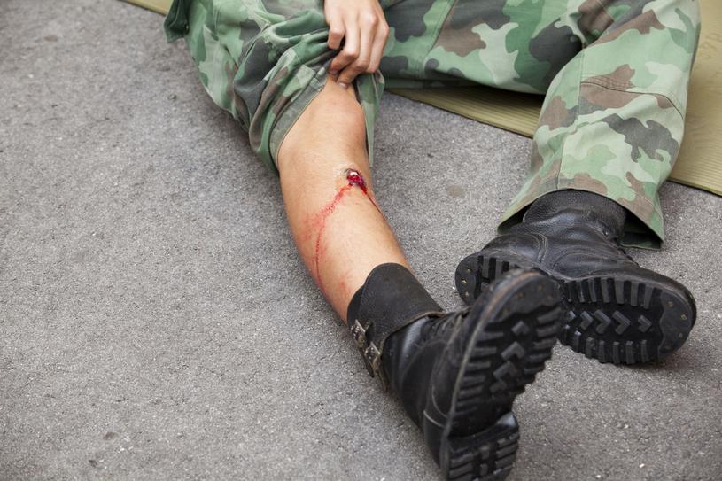 Nawet pozornie niegroźna rana postrzałowa może wiązać się z dużymi komplikacjami /123RF/PICSEL