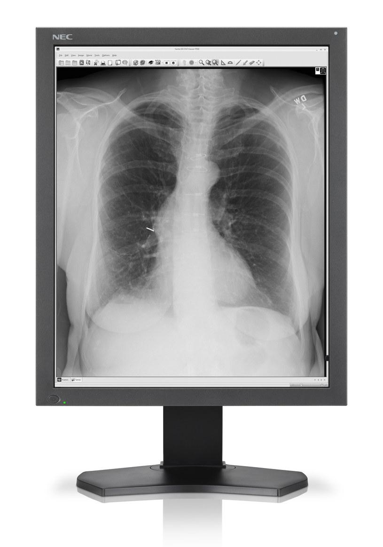 NEC MD212G3 - nowy monitor medyczny /materiały prasowe