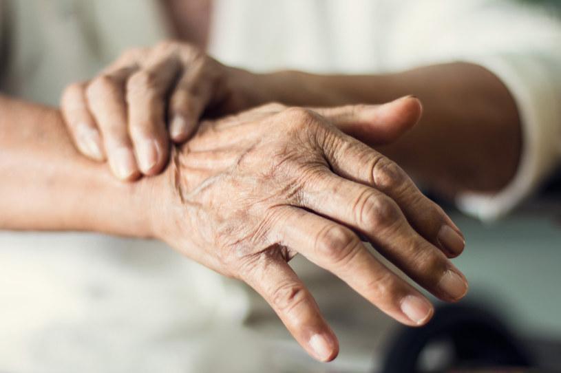 Nerwica może objawiać się na różne sposoby, jak chociażby wysypką i swędzeniem skóry /123RF/PICSEL